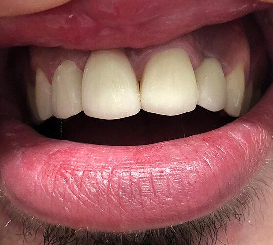 Ανασύσταση δοντιού