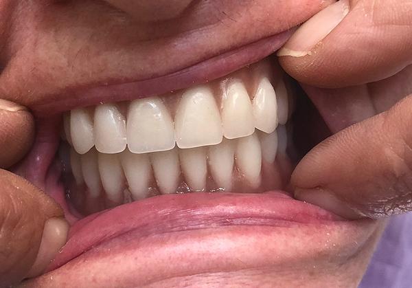Επένθετες οδοντοστοιχίες σε εμφυτεύματα