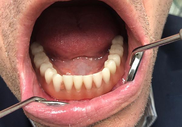 Επένθετη οδοντοστοιχία σε εμφυτεύματα