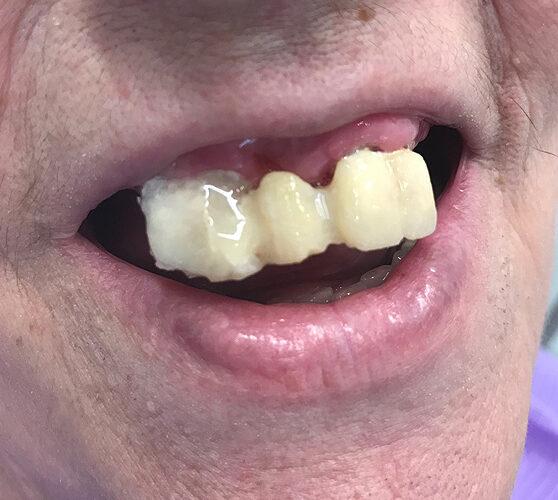 Γέφυρα σε μερική οδοντοστοιχία