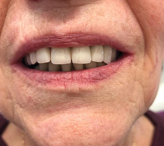 Μερική οδοντοστοιχία