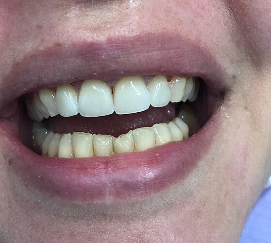 Όψεις πορσελάνης σε αποτριβές δοντιών